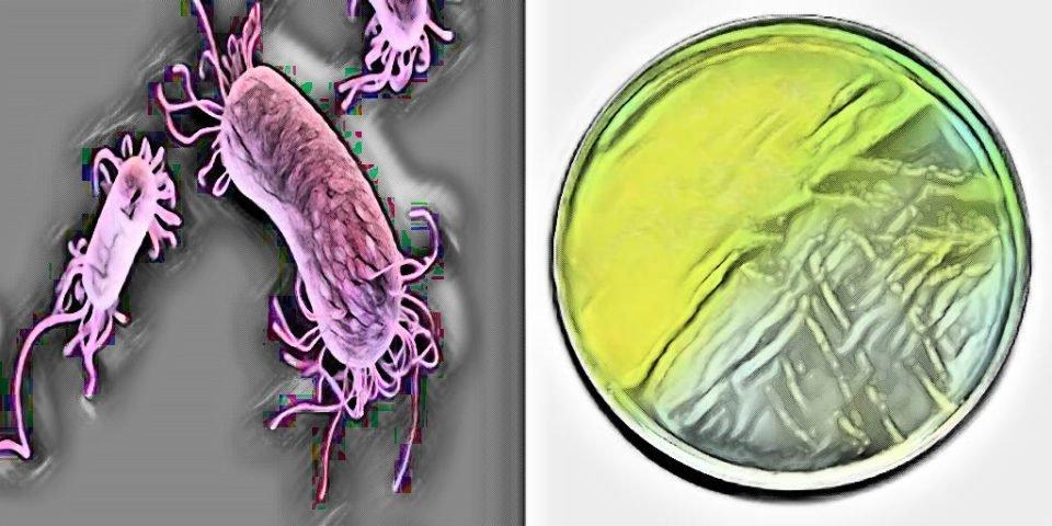 Morphology of pseudomonas aeruginosa - laborato culture characteristics of pseudomonas aeruginosa - what is pseudomonas aeruginosa - p aeruginosa on blood agar - macconkey agar - cetrimide agar