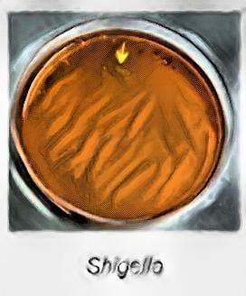 shigella dysenteriae on salmonella shigella agar medium - laboratory hub