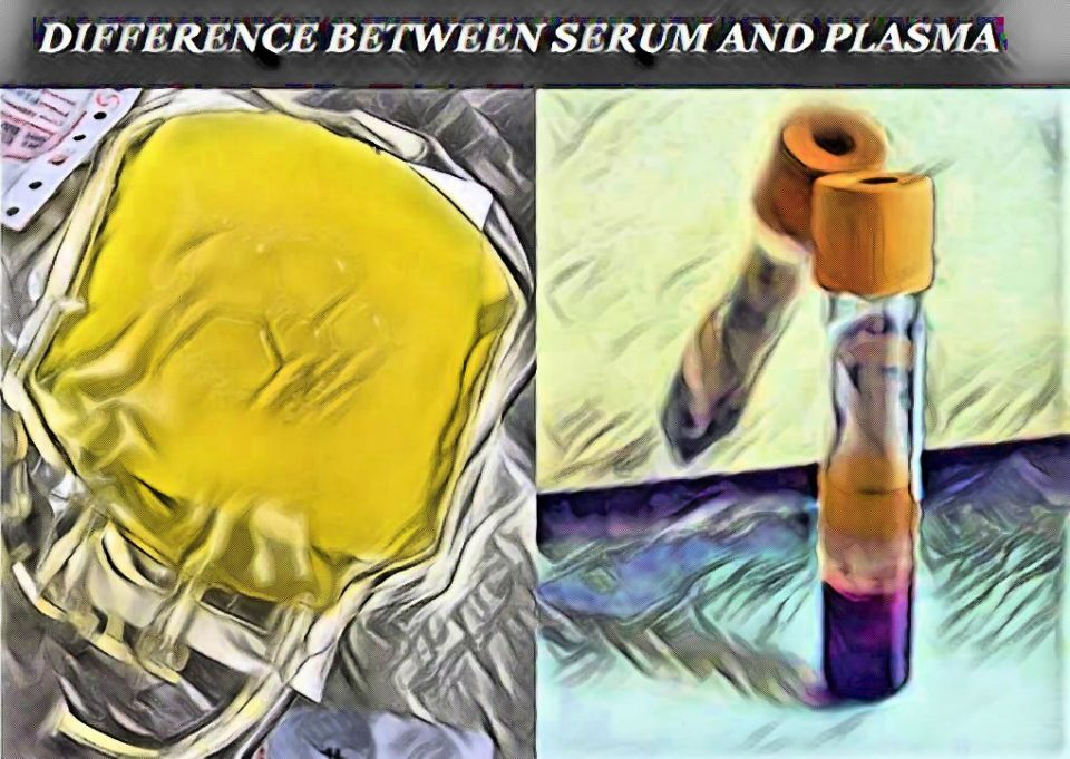 difference between serum and plasma - laboratory hub - what is serim - what is plasma - hematology practicals - how to distinguish plasma and serum - serum vs plasma - difference between