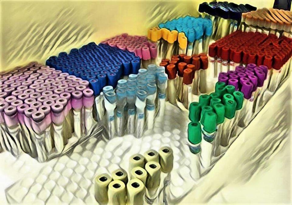 VACUTAINER TUBES - BLOOD COLLECTION TUBES - LABORATORY HUB - LAB STUDY NOTES - BLOOD VIALS - VACUUM VIALS - VACUTAINER VIALS -