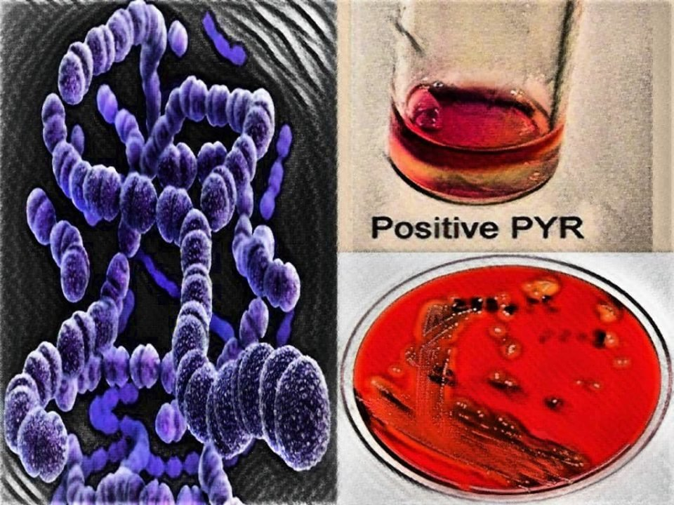 biochemical tests for streptococcus pyogenes - laboratory hub - biochemical tests of streptococcus - pyr test positive streptococcus