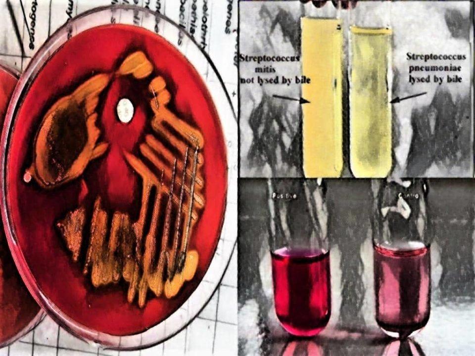 biochemical test for streptococcus pneumoniae - biochemical tests - inulin fermentation - alfa hemolysis - bile solubility test - streptococcus pneumoniae biochemical test