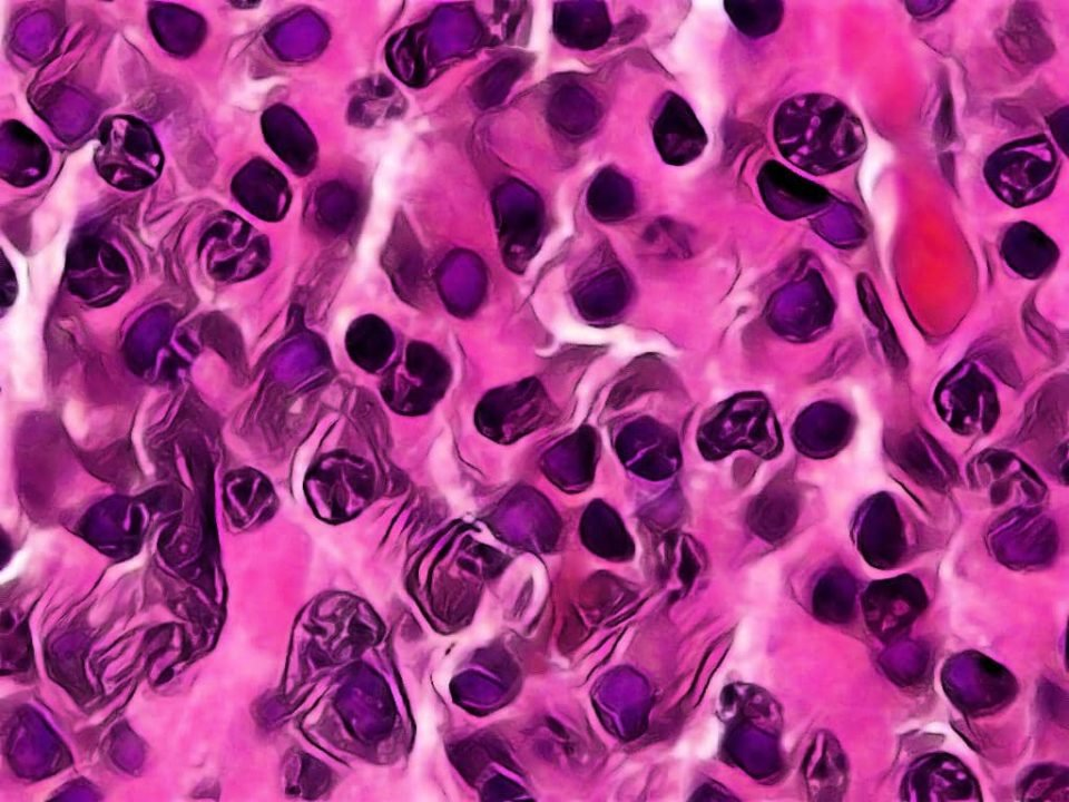 MULTIPLE MYELOME QUIZ - QUIZ ON MULTIPLE MYELOMA - HEMATOLOGY QUIZ - LABORATORY HUB