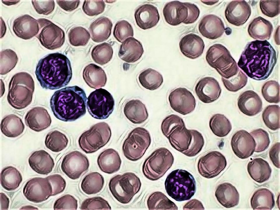 chronic lymphoid leukemia - chronic lymphocytic leukemia - LABORATORY HUB - quiz on cll - a quiz on chronic lymphocytic leukemia - cll