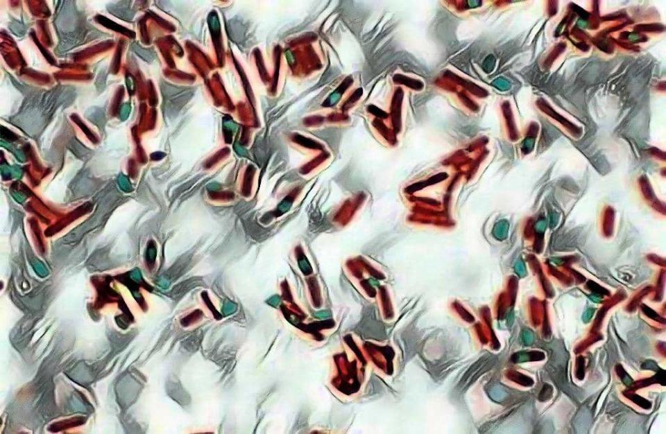 endospore staining - endospores - red color bacterial cell body - green color endospores