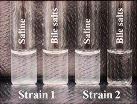 bile solubility test - tube method - bile solubility test tube method